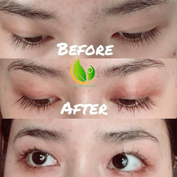 Serum Dưỡng Mi FEG Eyelash Enhancer giải pháp dưỡng mi an toàn hiệu quả hàng đầu hiện nay