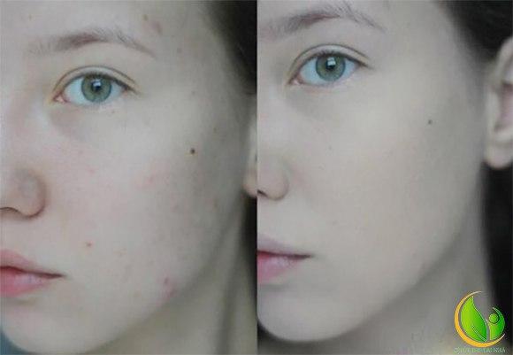 Tận hưởng làn da sạch thoáng lại không hề nhờn rít, hơn nữa còn rất mềm mượt
