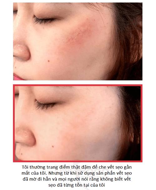 Phản hồi cực tốt của khách hàng về tinh chất trị sẹo Some By Me