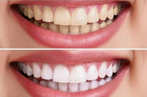 Sự thay đổi tông màu rõ rệt khi kiên trì dùng kem đánh răng Crest 3D White - khoedeptainha.vn