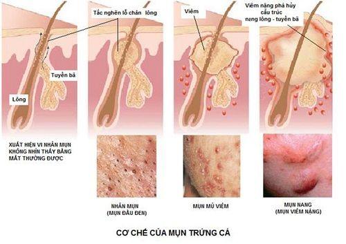 Kem Trị Mụn Neutrogena On The Spot Acne Treatment - Khoedeptainha.vn
