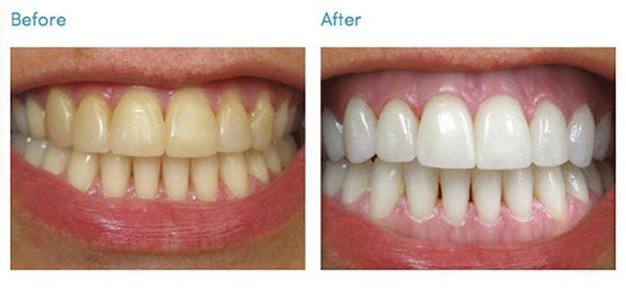 kem-danh-trang-rang-thom-mieng-Median-Dental-Iq-93%-Han-Quoc-(120g)-anh-2
