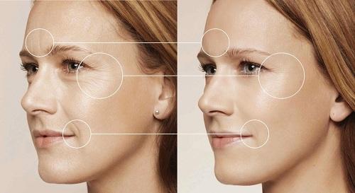 Ngăn chặn dầu hiệu lão hóa, các nếp nhăn và phục hồi làn da khỏe đẹp, mịn màng
